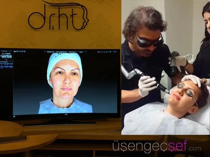 dr-huseyin-tirman-picosil-leke-tedavisi