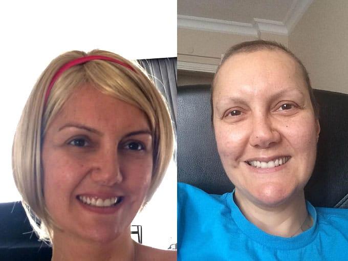 usengec-sef-meme-kanseri-kemoterapi-peruk